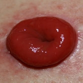 Urinestoma (Bricker)